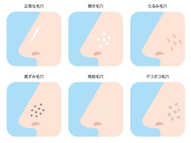 たるみ毛穴に効果!毛穴汚れをきれいにする洗顔料とは?おすすめ洗顔料8選