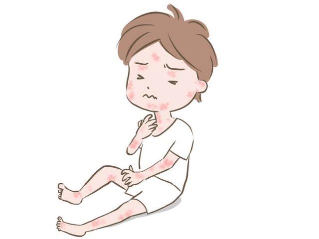 潤静(うるしず)の口コミ!カサカサ敏感肌の子どもに使ってみた体験レビュー